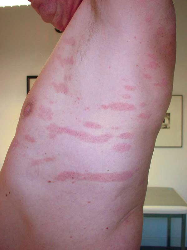 Hautarztpraxis Geesthacht Dr U Karsten Dr J Volkel Dr S